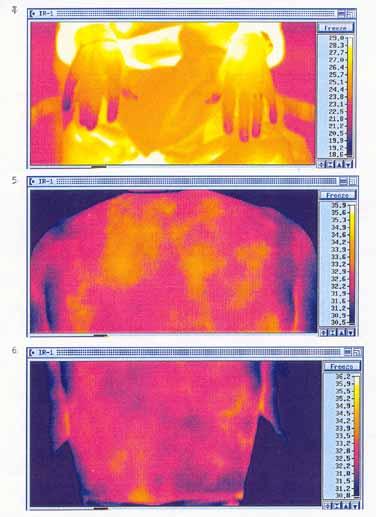 Ont lillfinger och allmänt ont i kroppen - Examensarbete Medicinsk Termografi